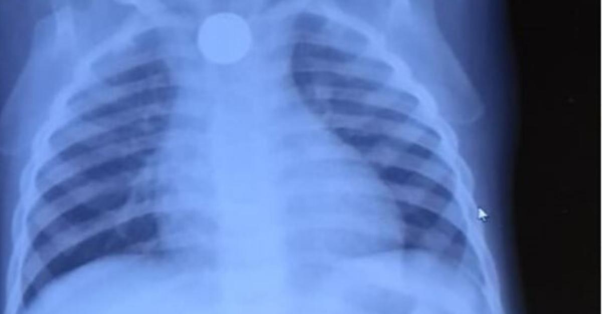 תמונת הרנטגן של בליעת הסוללות