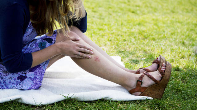 מה גורם למטרד היתושים?