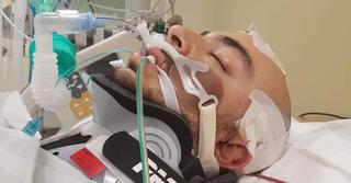 יוסף פרץ במהלך אישפוזו. מתפללים לרפואתו השלמה   צילום: פרטי